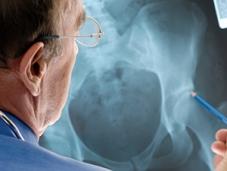 panellinia-karta-ygeias-osteoporosi